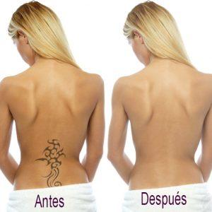 eliminacion_tatuajes_paloma_cornejo-1